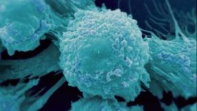 Why Cancer Is so Difficult to Cure