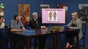 Treating Venous Disease: PAD, Varicose Veins and more
