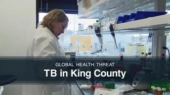 TB King County
