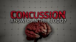 Concussion: Answers in the Blood?
