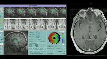 Beyond the Flavor/UVa MRI-guided Focused Ultrasound Program