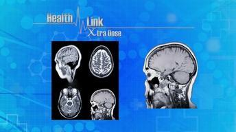 Xtra Dose | Parkinson's Disease
