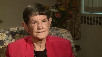 Sister Mary Rose Noonan on Scleroderma