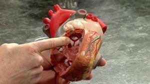 Heart & Arteries 2017