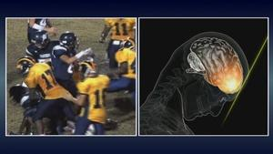 Concussions in Youth Sports, SF Criminal Justice Fees