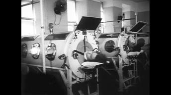 Polio and Iron Lungs in the 1950s. Le Clercq's Illness.