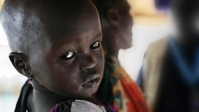 UN struggles to combat hunger in world's worst combat zones