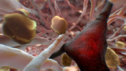 Can Alzheimer's Be Stopped? Video Thumbnail