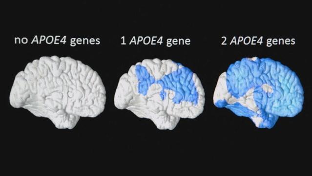 Predicting Alzheimer's