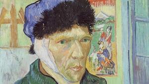 S16 Ep2: Van Gogh's Ear