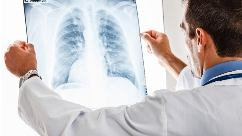 Health Link | Chronic Obstructive Pulmonary Disease