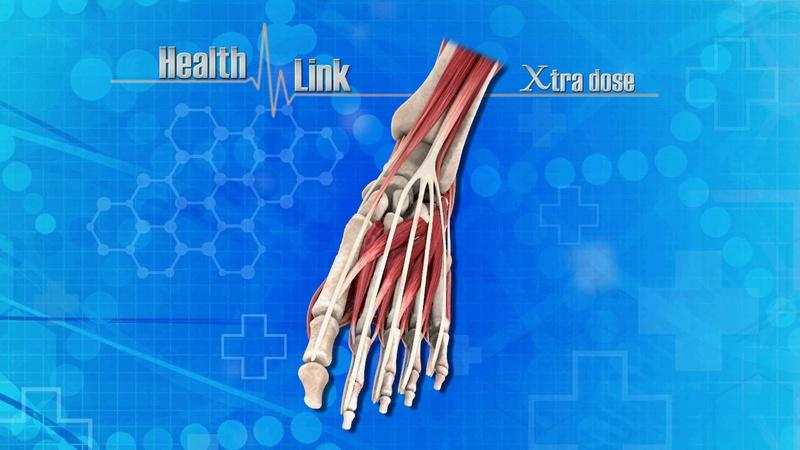Xtra Dose | Foot Health