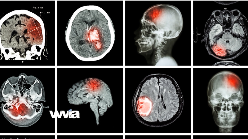 Call the Doctor - Stroke: Time Lost is Brain Lost
