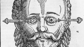 Image of Ancient Cataract Surgery