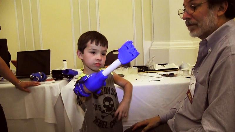3-D Printers puts Limbs on Kids