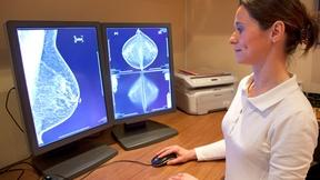 Image of Beware Direct-to-Consumer Breast Cancer Tests