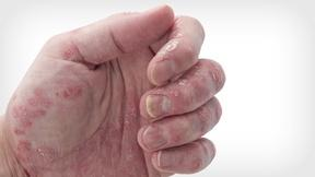 Image of Nothing Funny About 'the Heartbreak of Psoriasis'