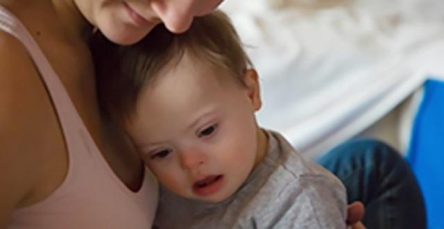 Understand More about Down syndrome