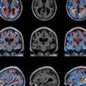 A Viral Alzheimer's Cure?