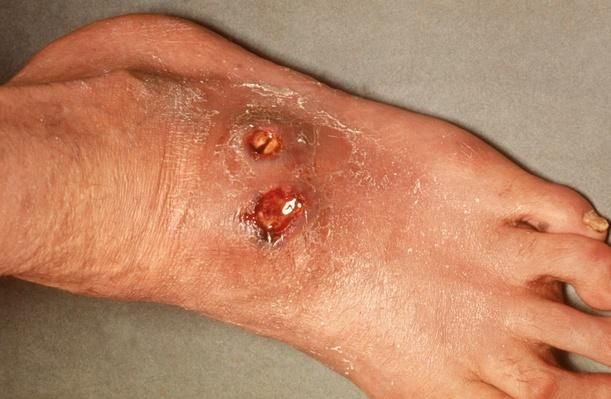 An ucler on a patient's foot, caused by tuberculosis | Global Infectious Diseases