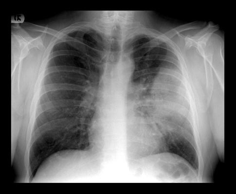 Frontal chest x-ray demonstrates  | Global Infectious Diseases