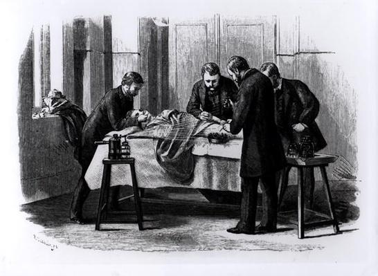 Antiseptic Surgery, 1882