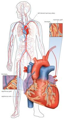 Diagram of double coronary artery bypass surgery | Science and Technology