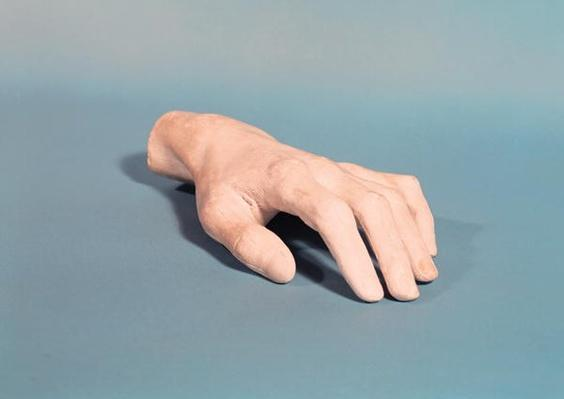 A cast of the hand of Frederic Chopin