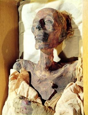 Mummified body of Ramesses II