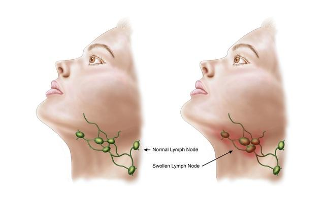 Anatomy of swollen lymph nodes | Science and Technology