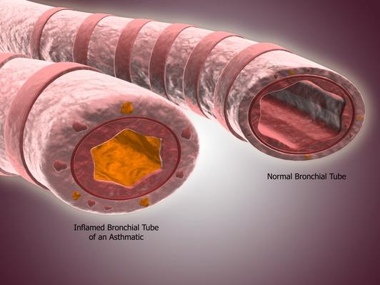 Trachea cross-section showing comparison of normal and asthmatic bronchiole | Science and Technology