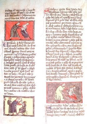 Ms H 89 fol.17r Surgery, from an edition of the 'Book of Surgery' by Rogier de Salerne