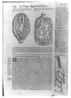Foetus, illustration from 'Oeuvres' by Ambroise Pare