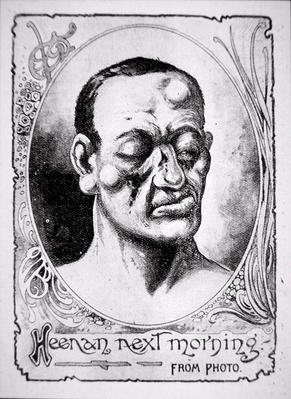 John Heenan's damaged face on the morning after his fight with Tom Sayers