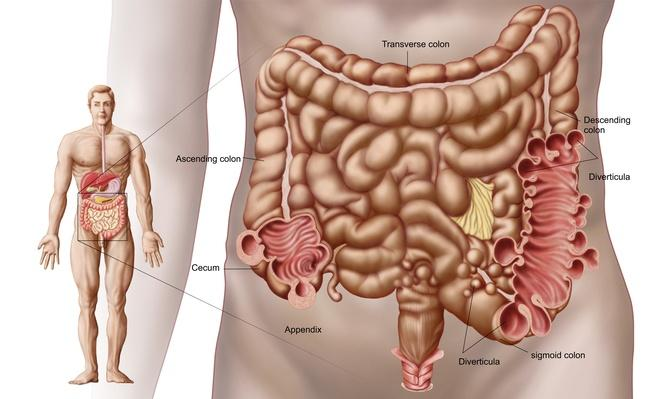 Diverticulitis in the descending colon region of the human intestine | Science and Technology