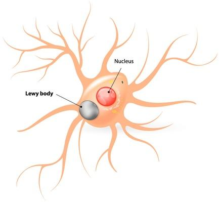 Lewy body. Parkinson's disease and Alzheimer's disease | Science and Technology