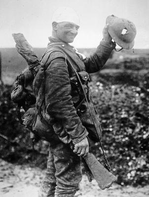 British soldier with bandaged head shows the steel helmet that saved his life from shrapnel during the First Battle of the Somme