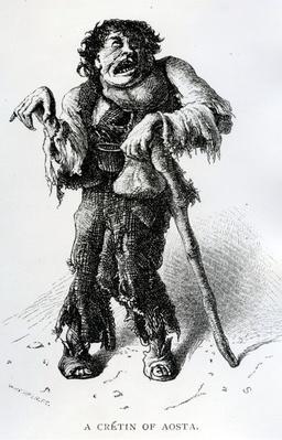 A Cr�tin of Aosta, c.1870