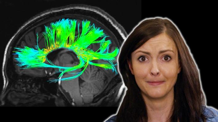 4 Odd Things We've Seen in Your Brain | BrainCraft