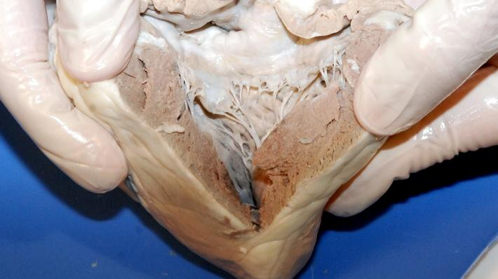 Dissected sheep heart from video