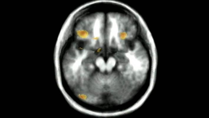 The Secret Life of the Brain, Part 3 | Schizophrenia and Hallucinations