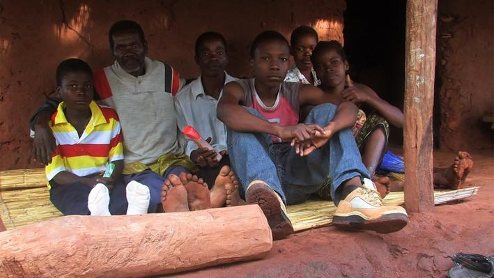 The Impact of AIDS in Mozambique