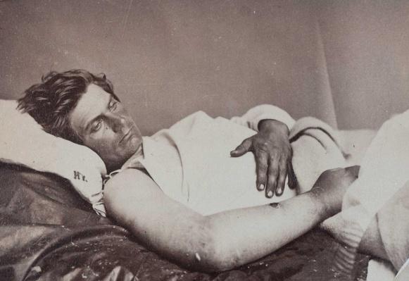 Gunshot Wound Right Hip with Infection, Surgeon R.B. Bontecou