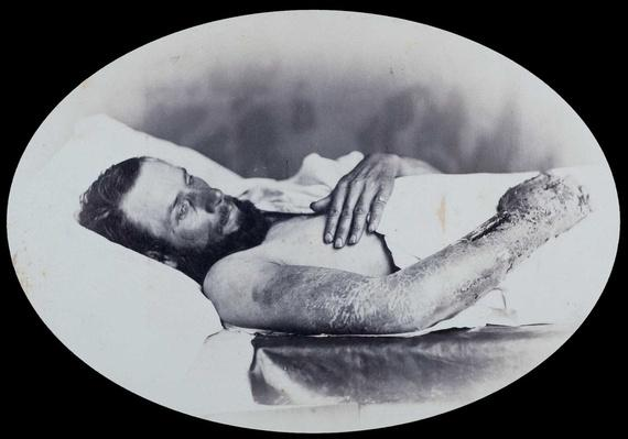 Gunshot Wound with Infection and Swelling of the Right Arm, Surgeon R.B. Bontecou