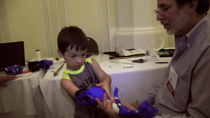 3-D Printing Prosthetics Process | Move to Include