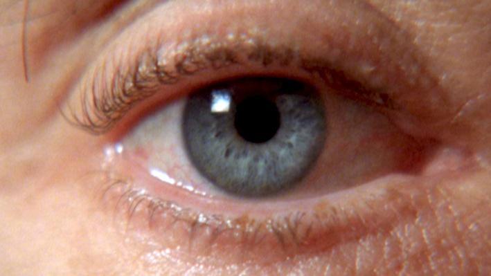 Evolution of the Eye