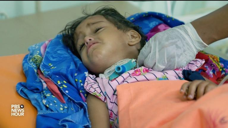 PBS NewsHour: Diphtheria takes a deadly stranglehold on war-torn Yemen