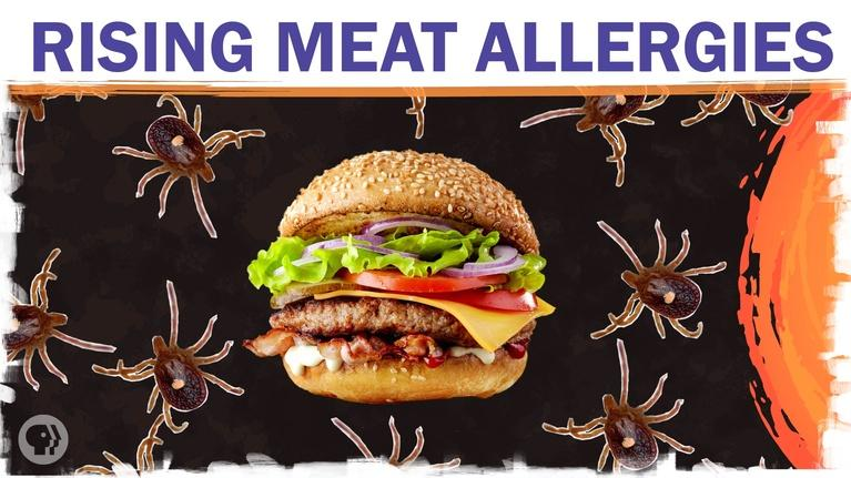 Hot Mess: Could climate change make you allergic to meat?