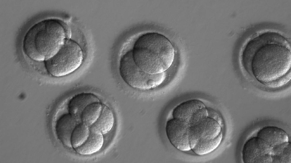 This gene-editing milestone raises big ethical questions image