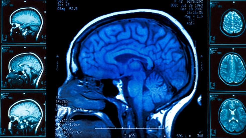 BRAIN INJURIES image